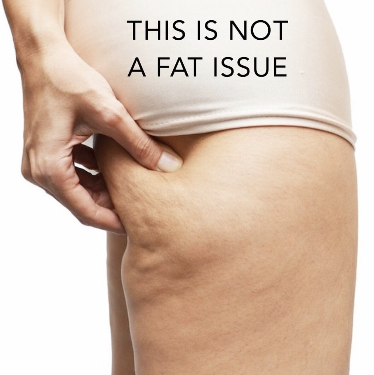 Cellulite and Fluid Retention